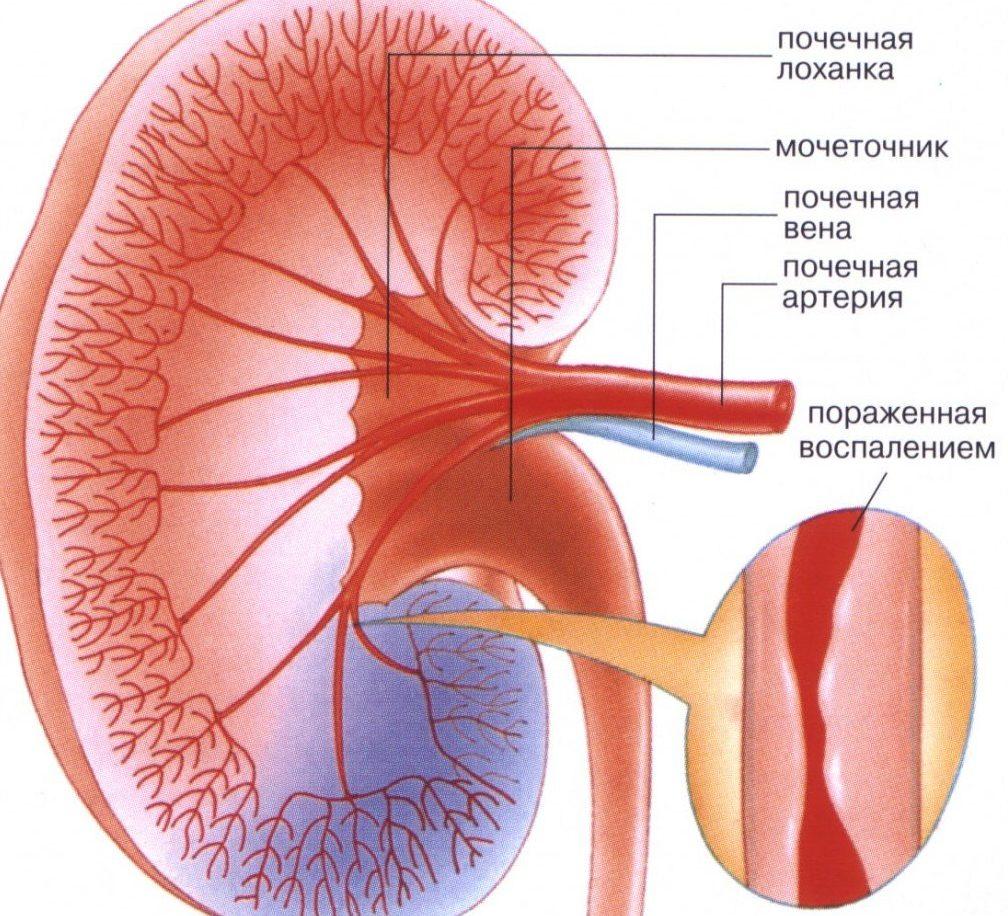 Аллергический васкулит: классификация болезни, причины и ее признаки, лечение патологии