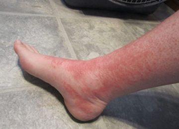 Васкулит на ногах: основные методики лечения
