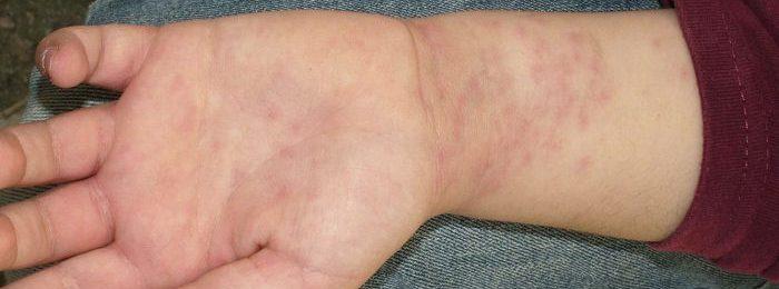 Геморрагческий васкулит у детей